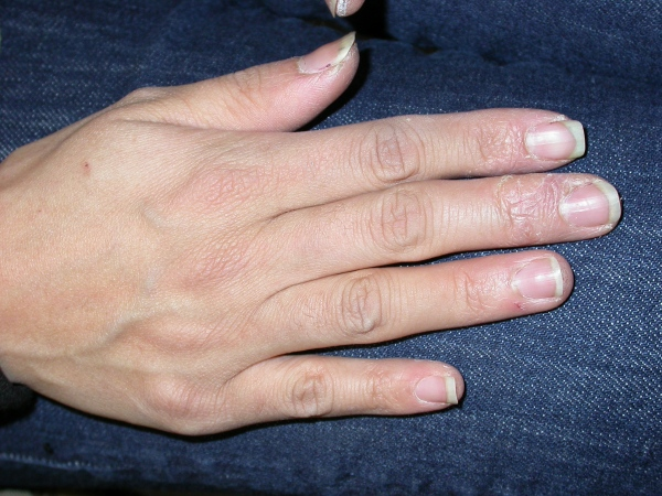 3 Ways to Treat Hand Eczema – wikiHow